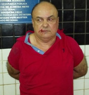 Ex-candidato a prefeito de Conceição do Lago Açu, Alexandre Lavepel.