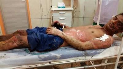 Caminhoneiro que sofreu queimaduras de 3º grau