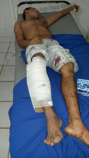 Pit Bull foi atingido com um tiro na perna por tentar golpear policiais durante ação
