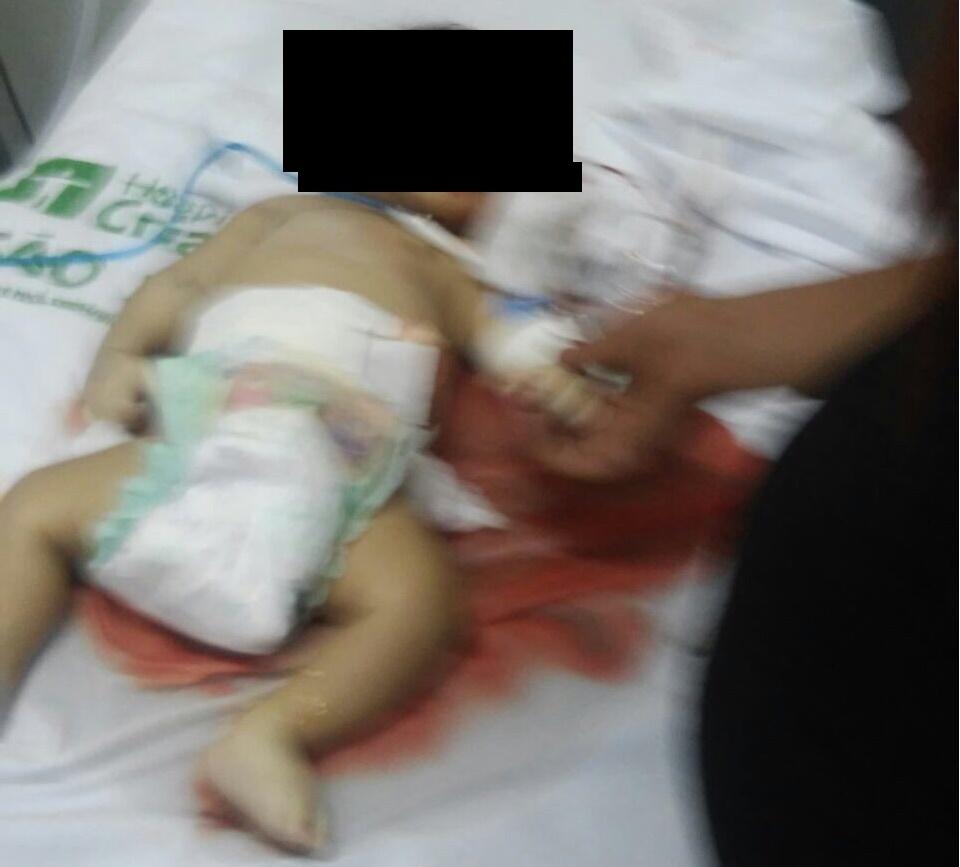 Criança vítima do sistema precário de saúde de Nova Olinda.